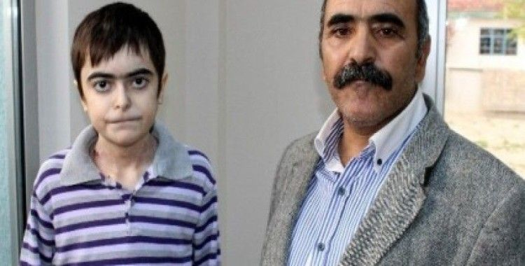 Deri hastası Ömer, Bakan İslam'dan yardım istedi