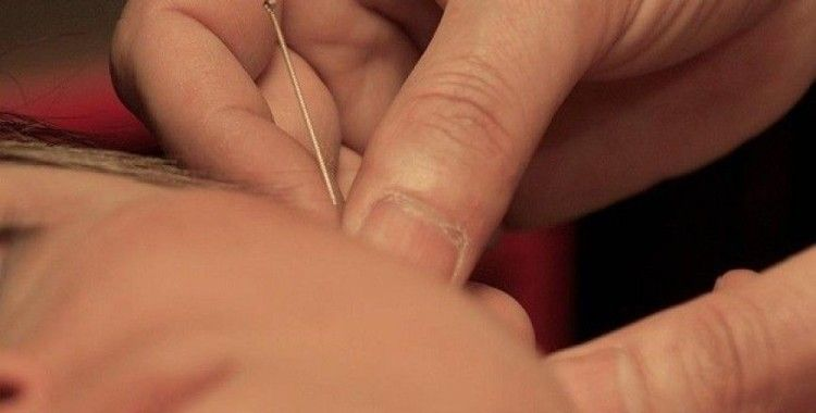 Akupunkturu ilk bulan Uygur Türkleri'dir
