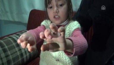 Yapışık parmaklı çocuğa hayırseverler sahip çıktı