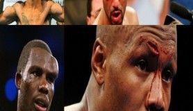 Boksörlerin ring öncesi ve sonrası fotoğrafları
