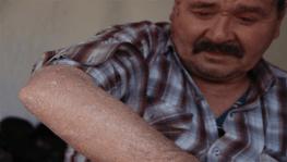 'Balık pulu' hastalığı vatandaşların kabusu oldu