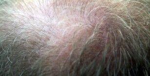 Saç dökülmesinin üç aydan uzun sürmesi hastalık habercisi