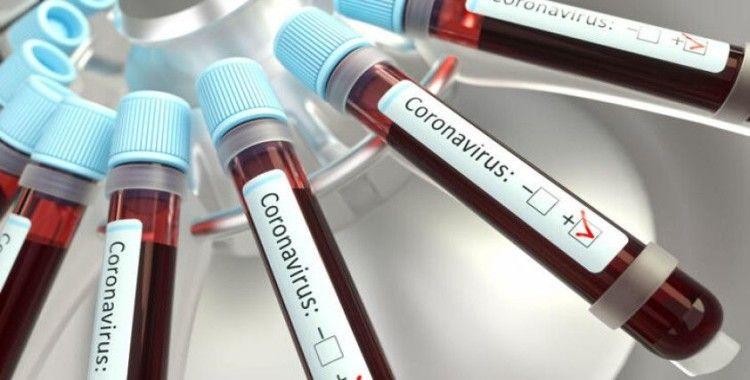 ABD'de korona virüs hastasına 35 bin dolarlık fatura