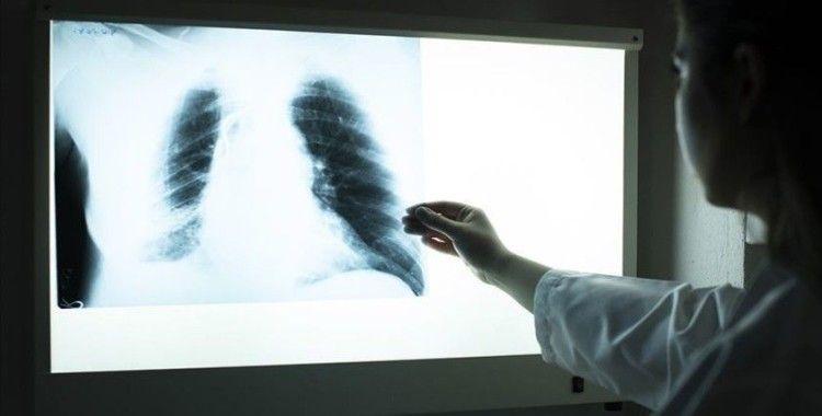 Akciğer hastalıkları koronavirüsün daha ciddi seyretmesine neden oluyor