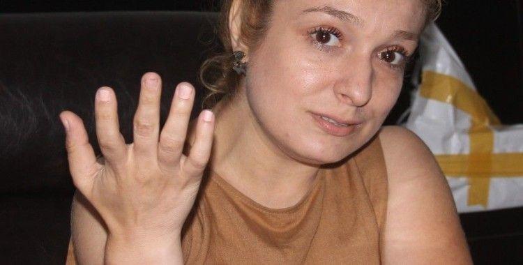 Kapkaç mağduru kadın o anları anlattı
