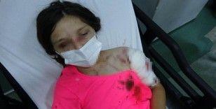 Kız çocuğuna dehşeti yaşatan pitbullun sahibine ceza yağacak