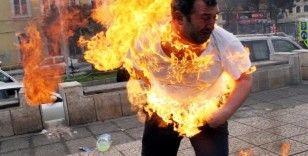 """O 'dehşet fotoğraf'taki kişi konuştu: """"Ateşe yaklaşamıyorum"""""""