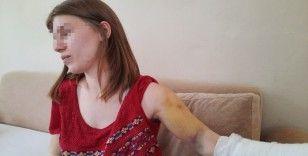"""Beyzbol sopasıyla öldüresiye dövülen genç kadın: """"Öleceğimi sandım"""""""