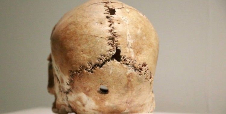 Dünyadaki ilk beyin ameliyatının yapıldığı Aşıklı Höyük 11 bin yıllık tarihe ışık tutuyor