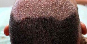 Saç ekiminde fiyatı kök miktarı belirliyor