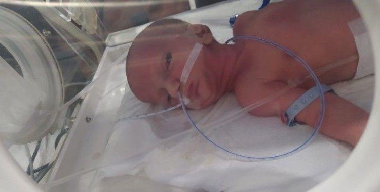 Dudakları yapışık doğan 86 Günlük bebeğin sağlığına kavuşması için seferber olundu
