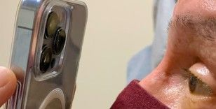 ABD'li doktor, göz tedavisi için iPhone 13 Pro Max kullanıyor